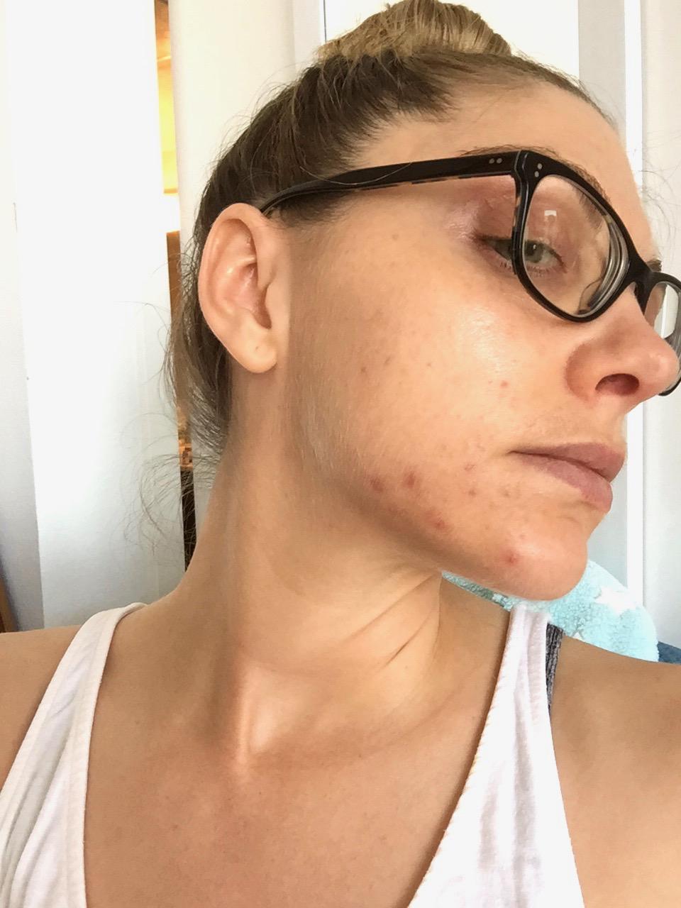 kathy acne skin 2016